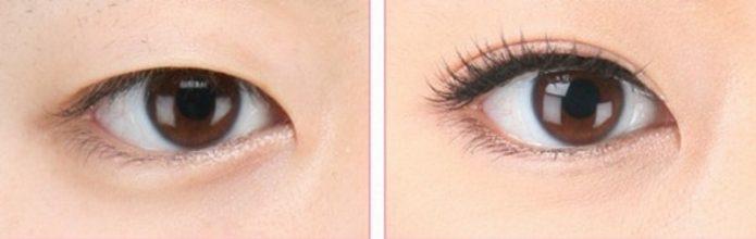 Хирургическое моделирование разреза глаз