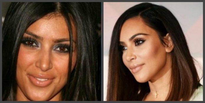 Ким Кардашьян до и после пластики филлерами