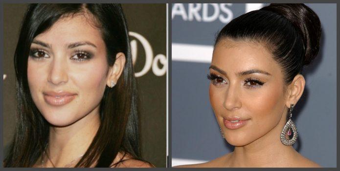 Ким Кардашьян до и после пластики лица