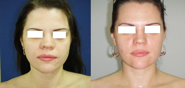 Коррекция перелома носа