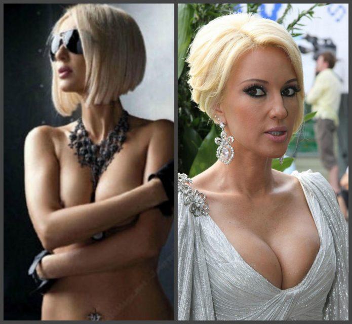 Лера Кудрявцева до и после маммопластики