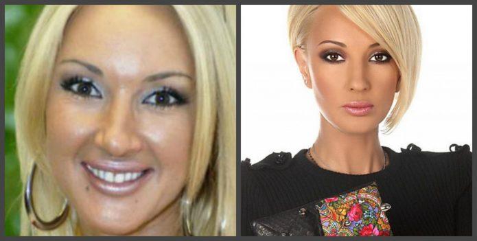 Лера Кудрявцева до и после пластики ботоксом