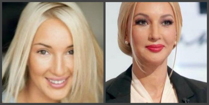Лера Кудрявцева до и после пластики лица