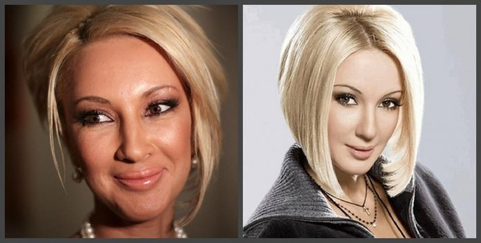 Лера Кудрявцева до и после пластики век