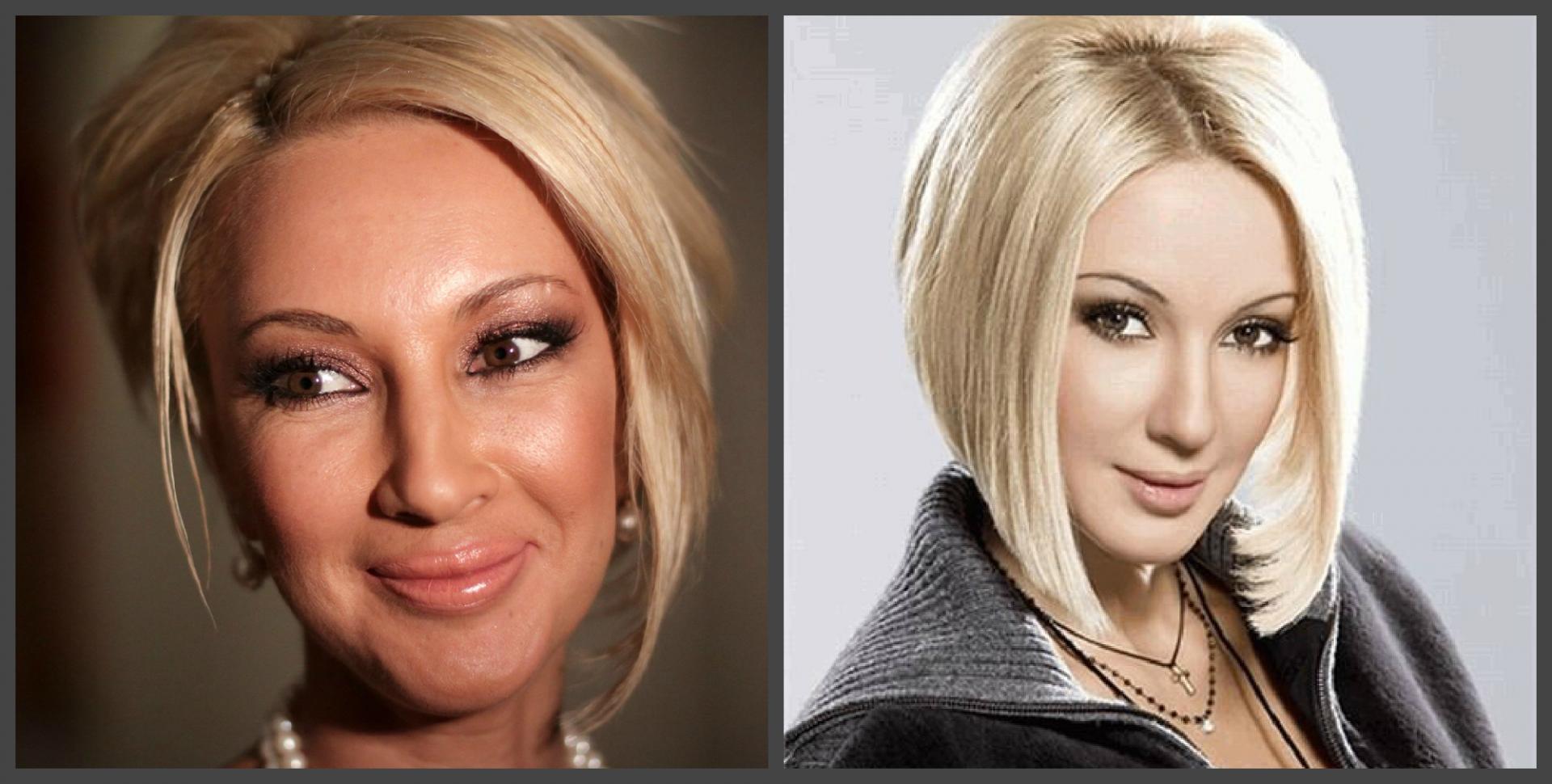 Лера, кудрявцева до и после