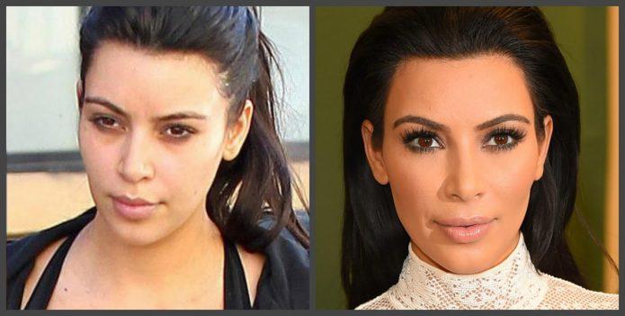 Лицо Ким Кардашьян до и после пластики