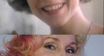 Лицо Марины Зудиной до и после пластики