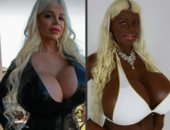 Мартина Биг до и после пластики