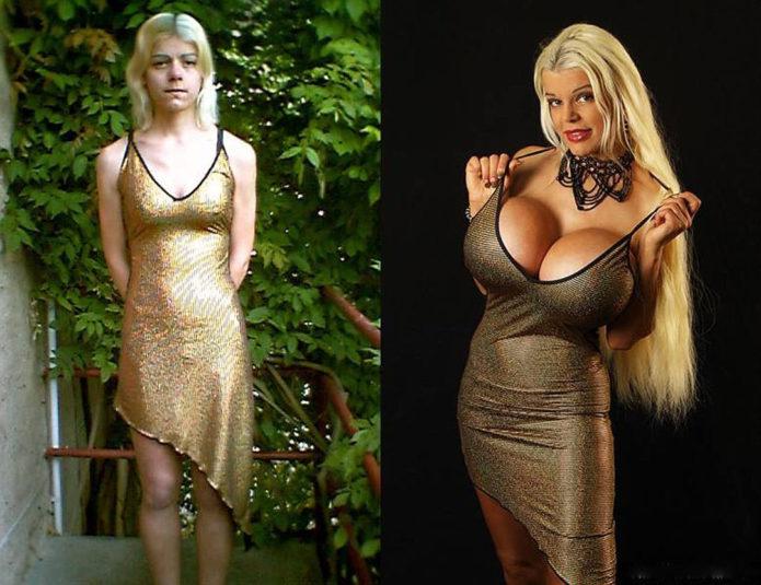 Мартина Биг до и после пластики груди