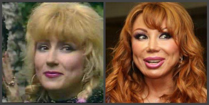 Маша Распутина до и после пластики носа