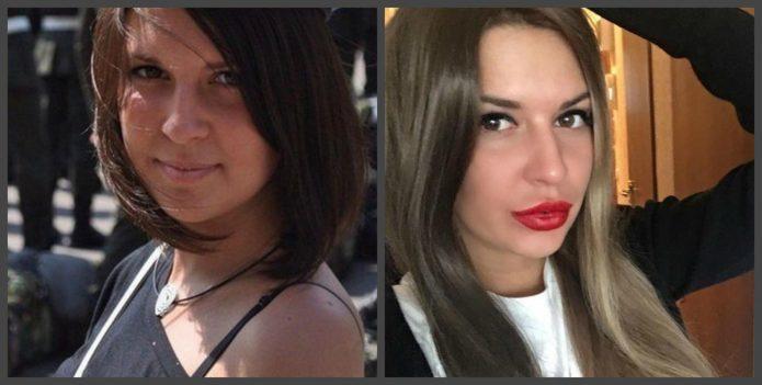 Майя Донцова до и после пластики губ