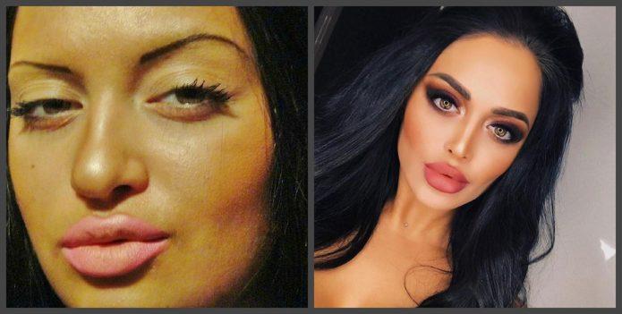 Нита Кузьмина до и после пластики носа