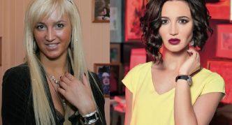 Ольга до и после коррекции носа