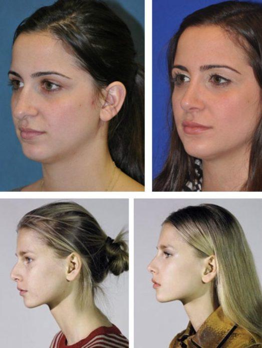 Пластика носа: фото до и после