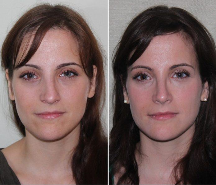 Пластика носа после перелома