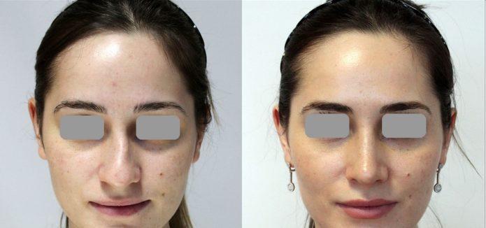 Пластика носа после перелома со смещением