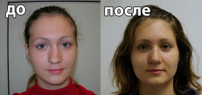 Пластика сломанного носа: до и после