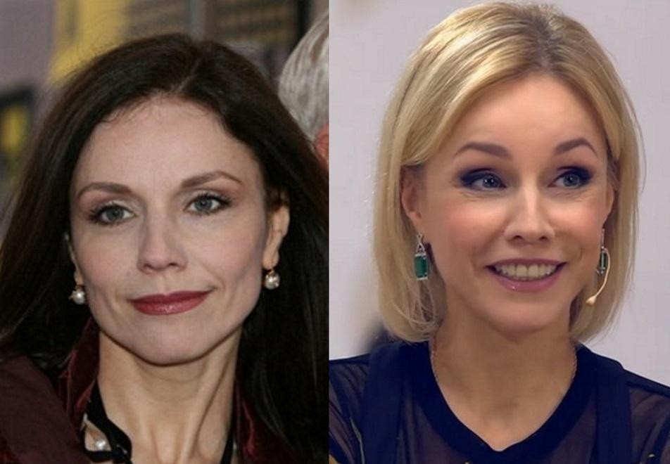 Марина Зудина до и после уколов ботокса