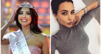 Анастасия Решетова до и после пластики губ