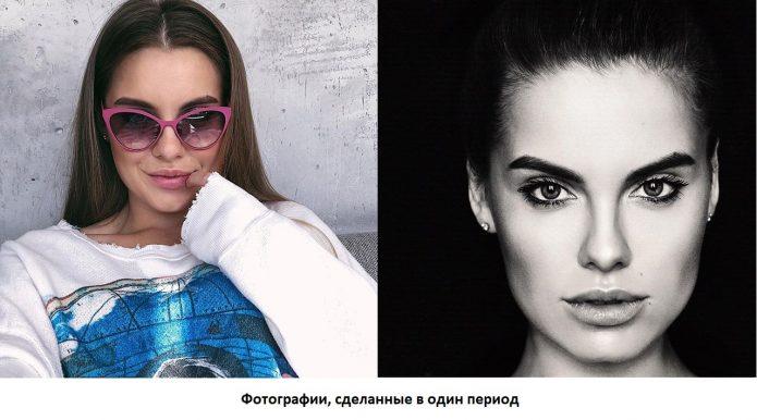 Дарья Клюкина до и после пластики