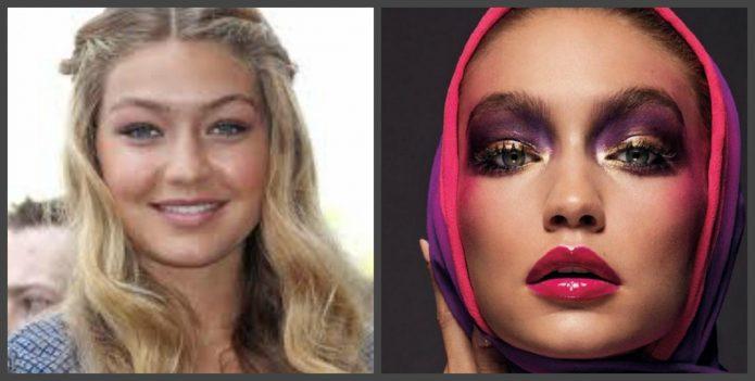 Джиджи Хадид до и после пластики