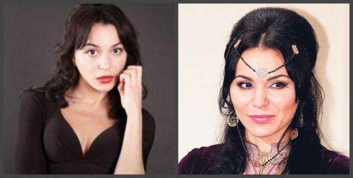 Лаура Кеосаян до и после пластики