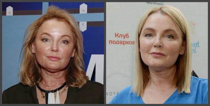 Лариса Вербицкая до и после пластики