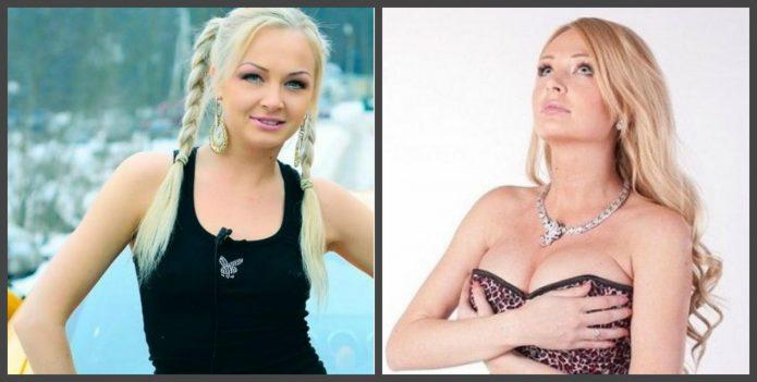 Дарья Пынзарь до и после пластики
