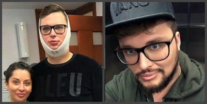 Егор Халявин до и после пластики
