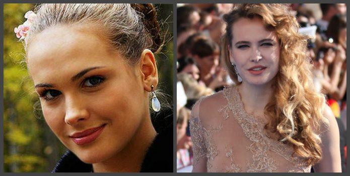 Анны Горшкова до и после