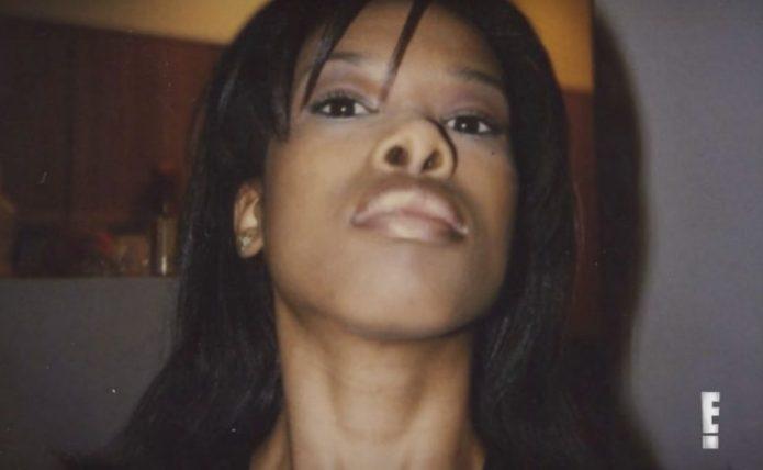 Модель Келли Джонсон после неудачной пластики носа