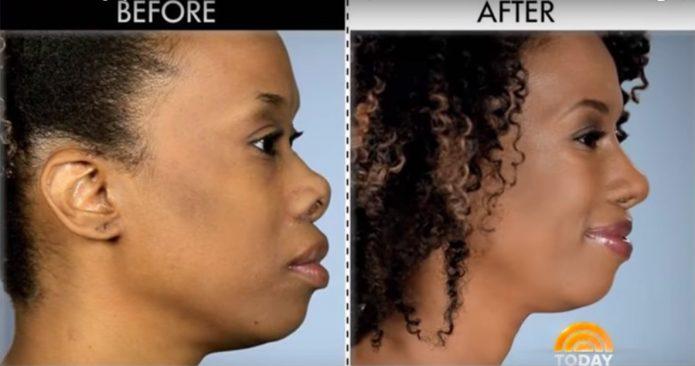 Модель Келли Джонсон до и после пластики носа