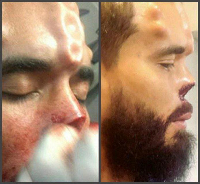 Генри после пластики носа