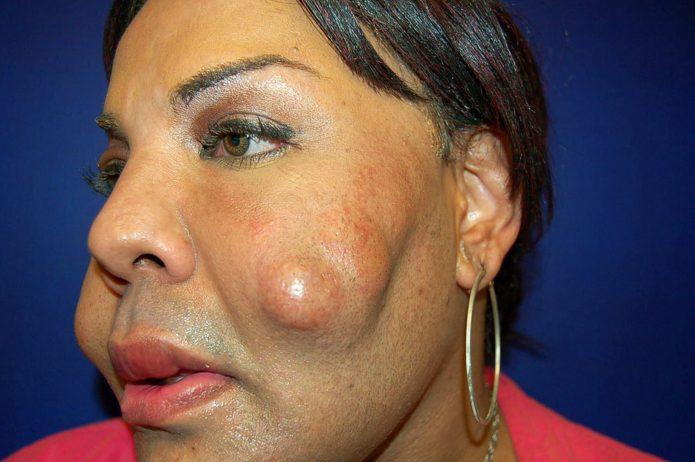 Каменные наросты на лице Раджи