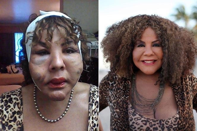 Наринесинг до и после лечения