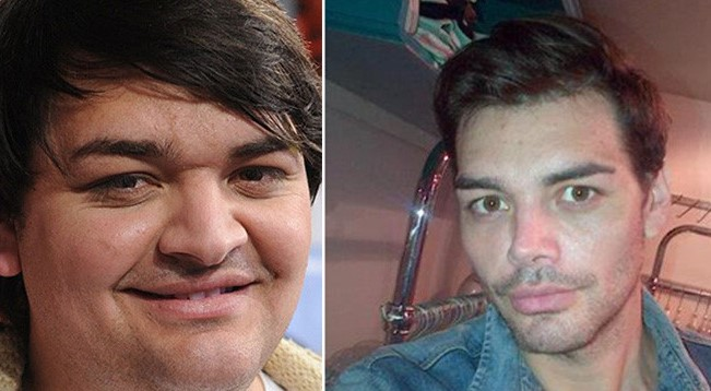 Фран Мариано до и после пластики