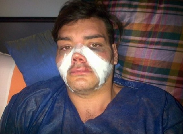Фран Мариано после ринопластики