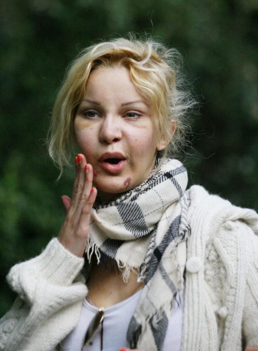 Алисия Дюваль после неудачной операции на лице