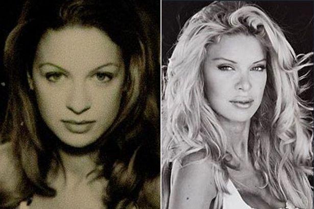 Алисия Дюваль фото до и после пластики