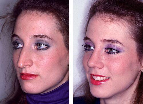 Ринопластика изменила лицо девушки в лучшую сторону