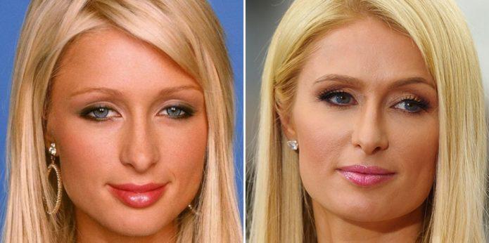 Пэрис Хилтон до и после пластики носа
