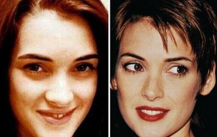 Вайнона Райдер до и после пластики носа