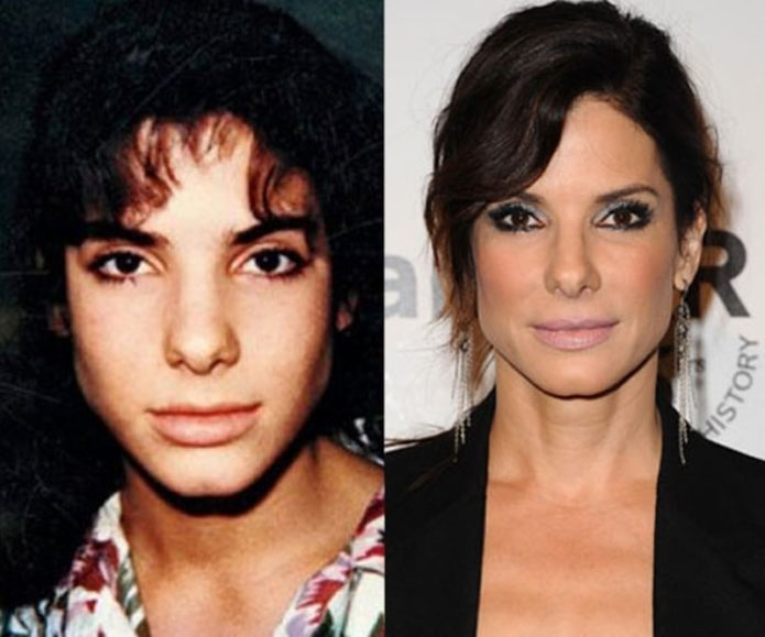 Сандра Баллок до и после пластики носа