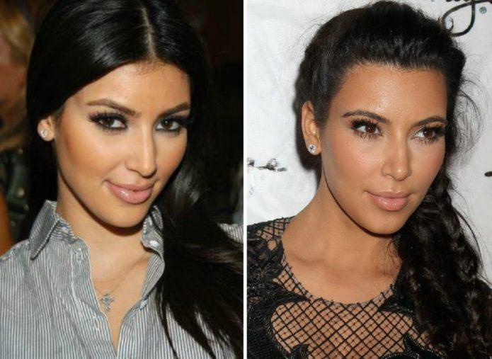 Ким Кардашьян до и после пластики носа