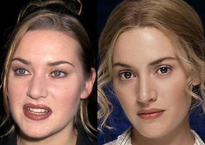 Кейт Уинслет до и после пластики носа