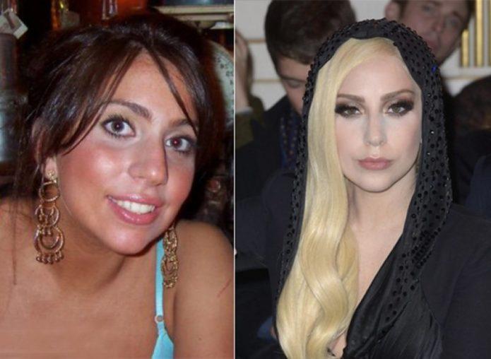 Леди Гага до и после пластики носа