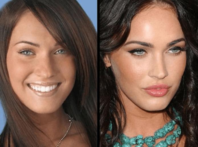 Меган Фокс до и после пластики носа