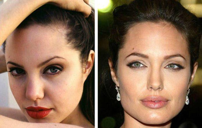 Анджелина Джоли до и после пластики носа