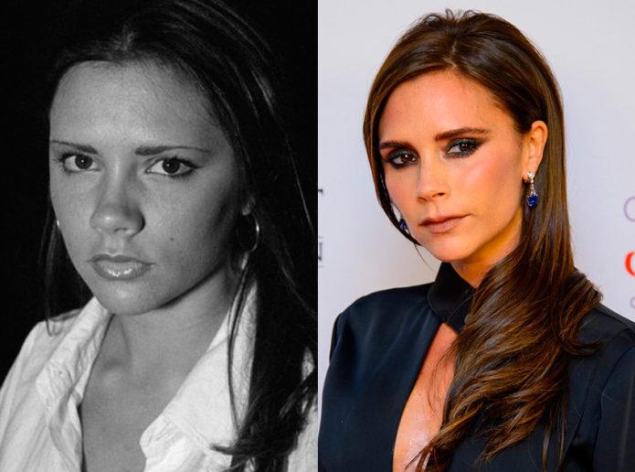 Виктория Бекхэм до и после пластики носа