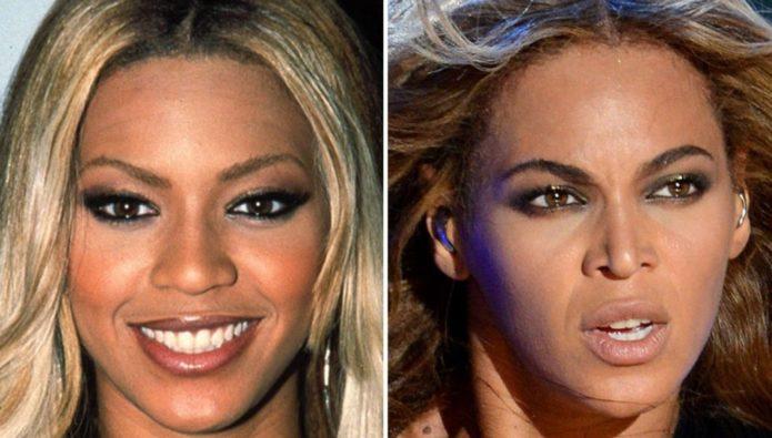 Бейонсе до и после пластики носа